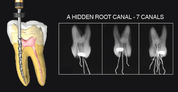 Root Canal Treatment Part 2: Top 10 Common Reasons For Why