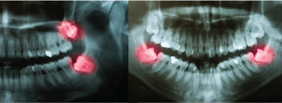 Wisdom Teeth X-ray Westcoast