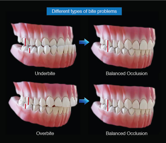 Anterior Guidance Different Types Of Bite Problems Westcoast