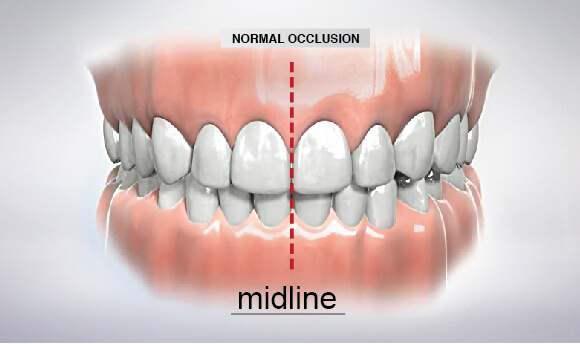 should i be concerned about dental occlusion or anterior guidance