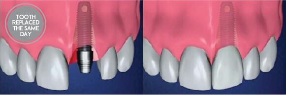 Teeth in a Day with Westcoast Dental Clinic