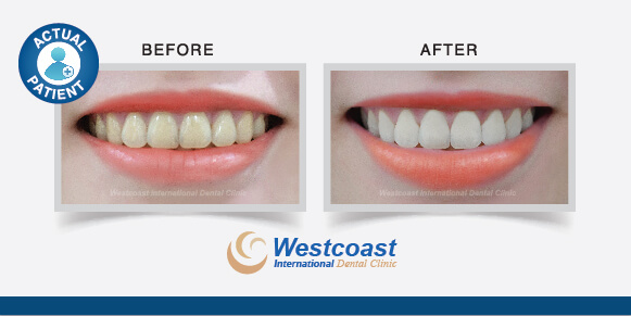 Teeth Whitening Procedure With Westcoast International Dental Clinics
