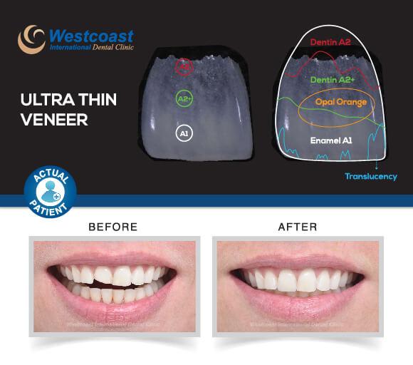 Dental Technology: Ultra-Thin Veneers Westcoast Dental Clinic