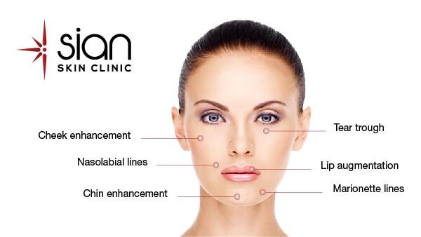 Botox SIAN Skincare Laser Clinic Vietnam