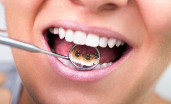 Orthodontics and Invisible Braces: Lingual Braces Westcoast
