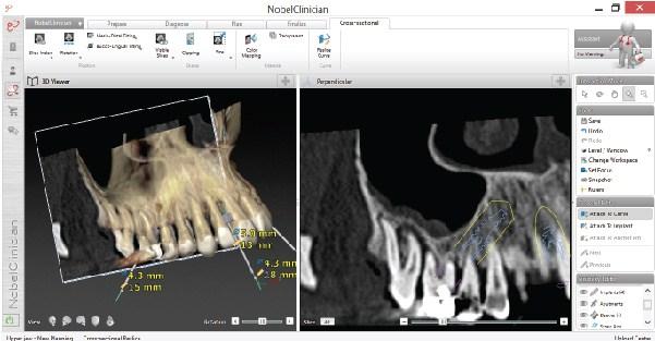 Dental Implants Nobel Software Westcoast