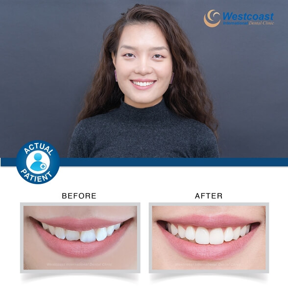 Ultra Thin Veneers at Westcoast
