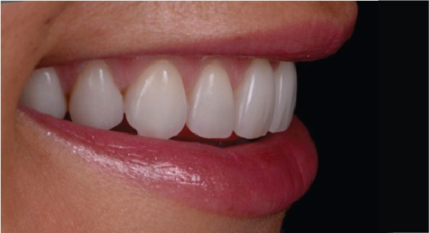 Westcoast Dental Smile