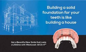 Dental Implants Westcoast Smile