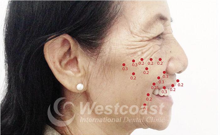 Dental Work Vietnam