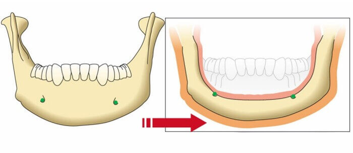 All-ON-4 Dental Implants: Dental Jawbone