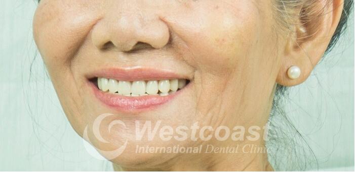 All-ON-4 Dental Implants: Final Result