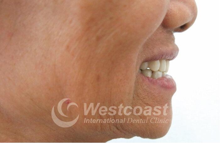 Dental All-On-4 Westcoast