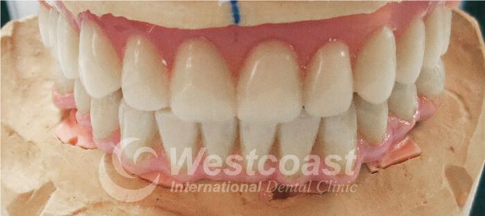 All-ON-4 Dental Implants:  Dental Work Westcoast