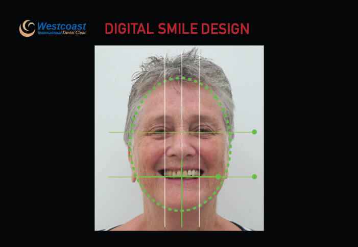 Digital Smile Design (DSD)