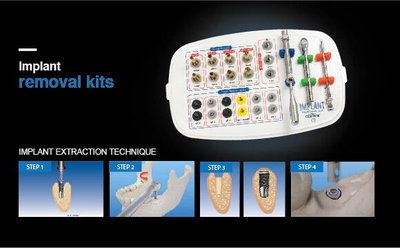 Failed Dental Implant Removal Kit