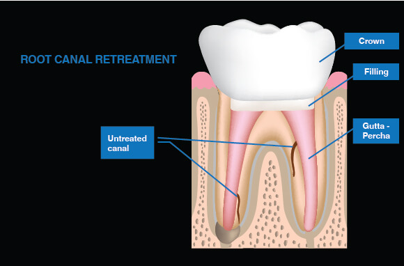 Root Canal Treatment - Bacteria