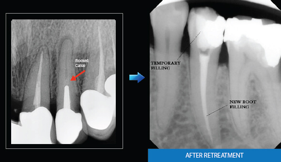 Root Canal Treatment - Blockage