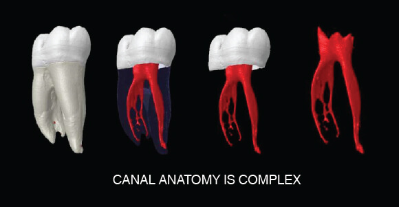 Root Canal Procedure - Canal Anatomy