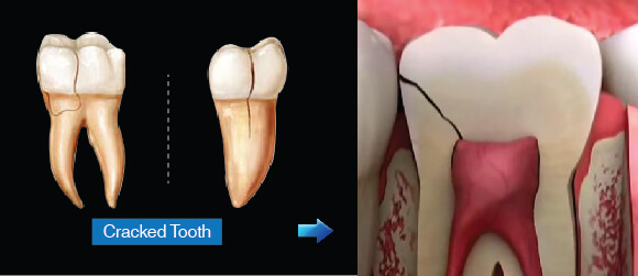 Root Canal Treatment - Cracked Tooth