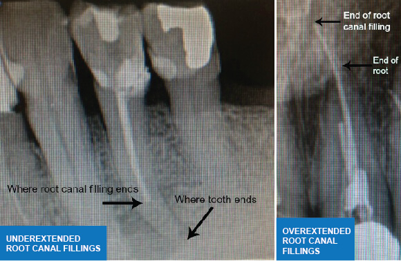 Root Canal Treatment - Fillings