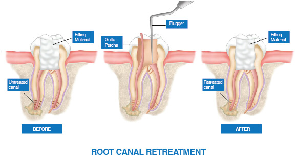 Root Canal Treatment - Obturation