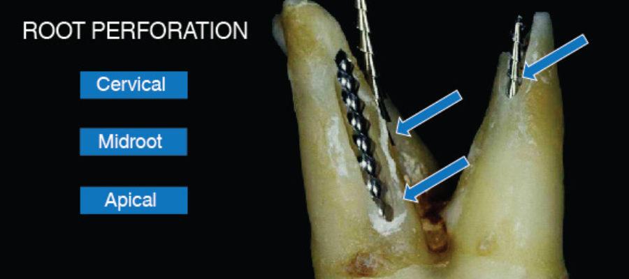 Endodontie canale radiculare acces