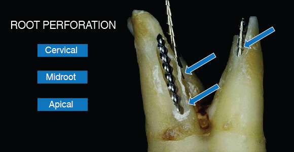 broken root canal tooth removal