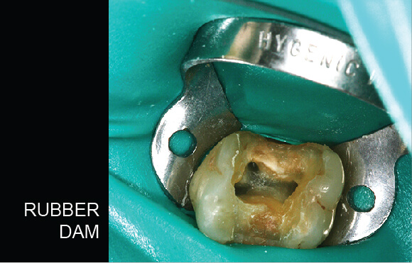 Root Canal Treatment - Rubber Dam