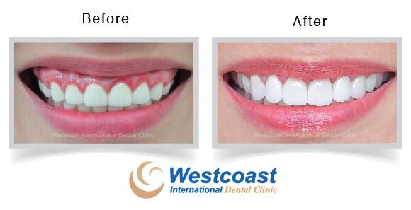 Dental Crown Lengthening Procedure Westcoast Dental Clinic