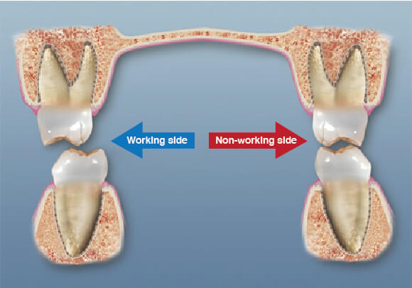 Dental Occlusion Working Side Interference Westcoast