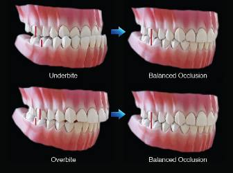 Dental Occlusion Anterior Guidance Part 2 Should I Be