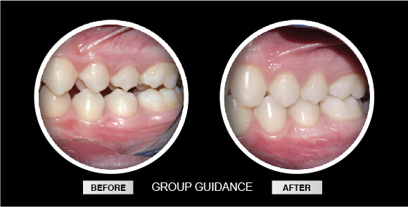 Anterior Guidance Before & After Westcoast