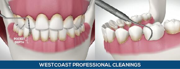 Dental Cleanings Westcoast