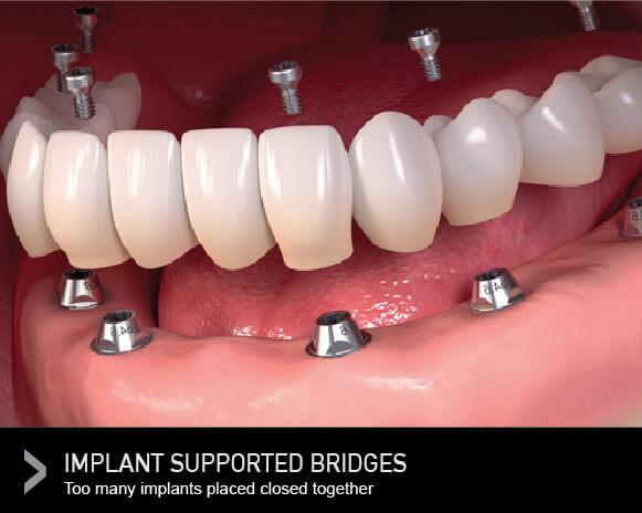 Dental Bridges: Why Choose a Dental Bridge Over a Dental Implant?