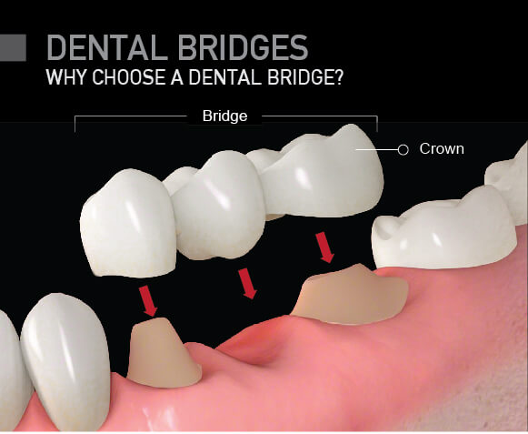 Dental Bridges: Why Choose a Dental Bridge Over a Dental