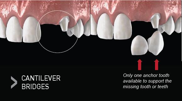 Types of Dental Bridges - Cantilever - Westcoast