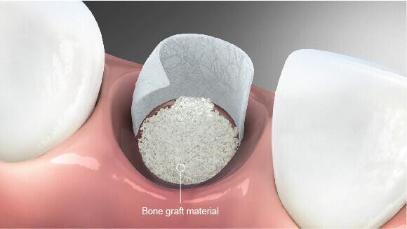 Bone Graft Bone Augmentation Westcoast Dental Clinic