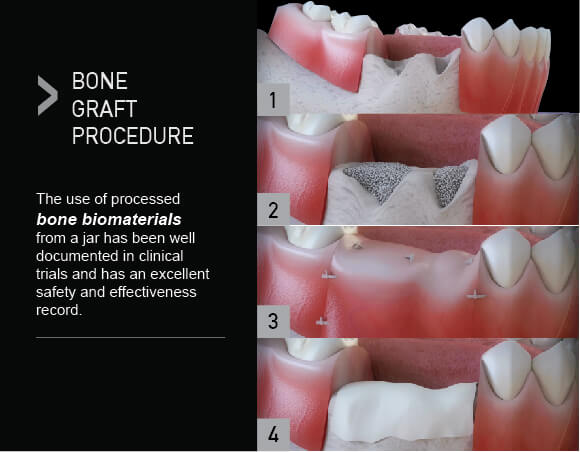 Bone Graft Bone Reconstruction Bone Augmentation For Dental Implants