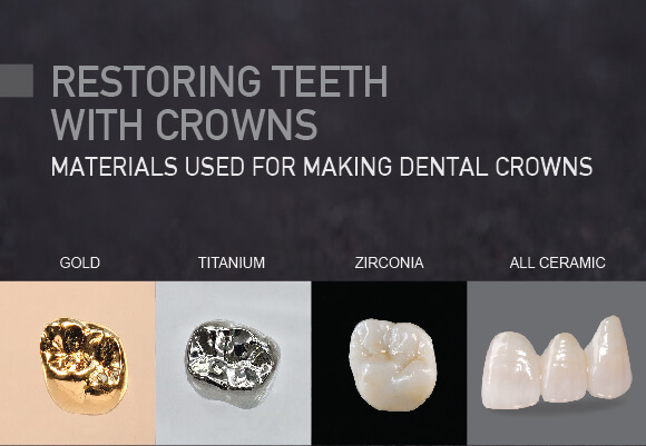 Dental Crowns Materials Westcoast