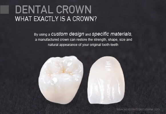 Dental Crowns Westcoast International Dental Clinic