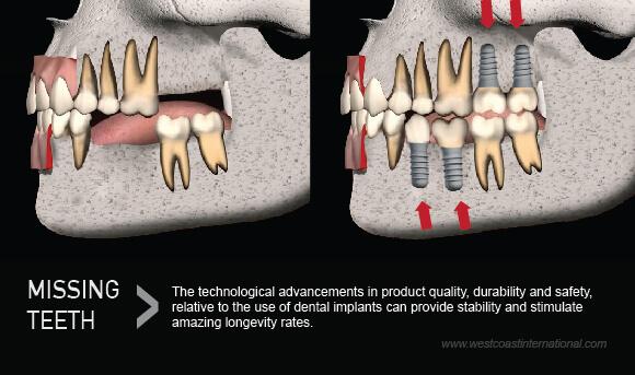 Dental Implants Westcoast Dental Clinic