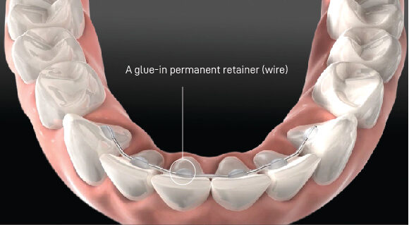 Orthodontic Relapse: Not following up with your orthodontist