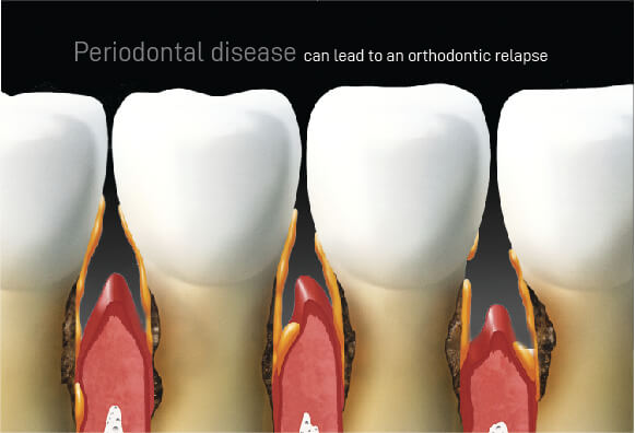 Orthodontic Relapse: Periodontal Disease can wreak havoc with your oral health and lead to an orthodontic relapse