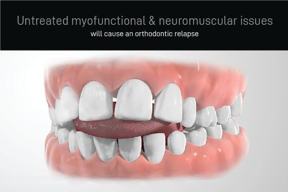 Orthodontic Relapse: Untreated myofunctional and neuromuscular predispositions