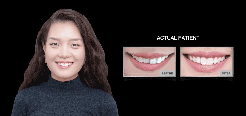 Westcoast International Dental Clinic: Veneers Case