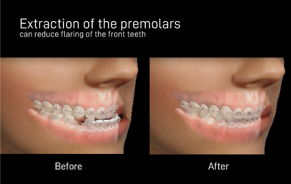 Orthodontic Extraction Vs Non Extraction Which Is Best For Me
