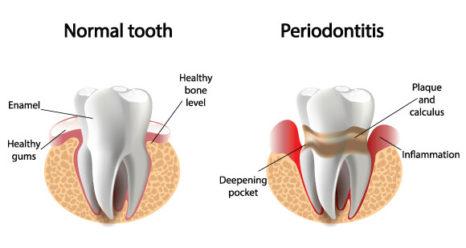 periodontitis-gum-disease-466x248.jpg