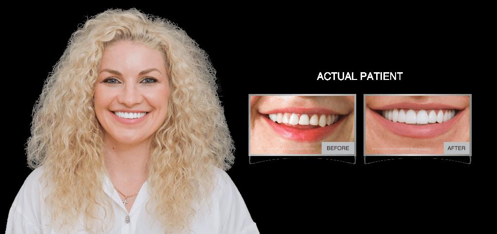 Westcoast Dental Veneers