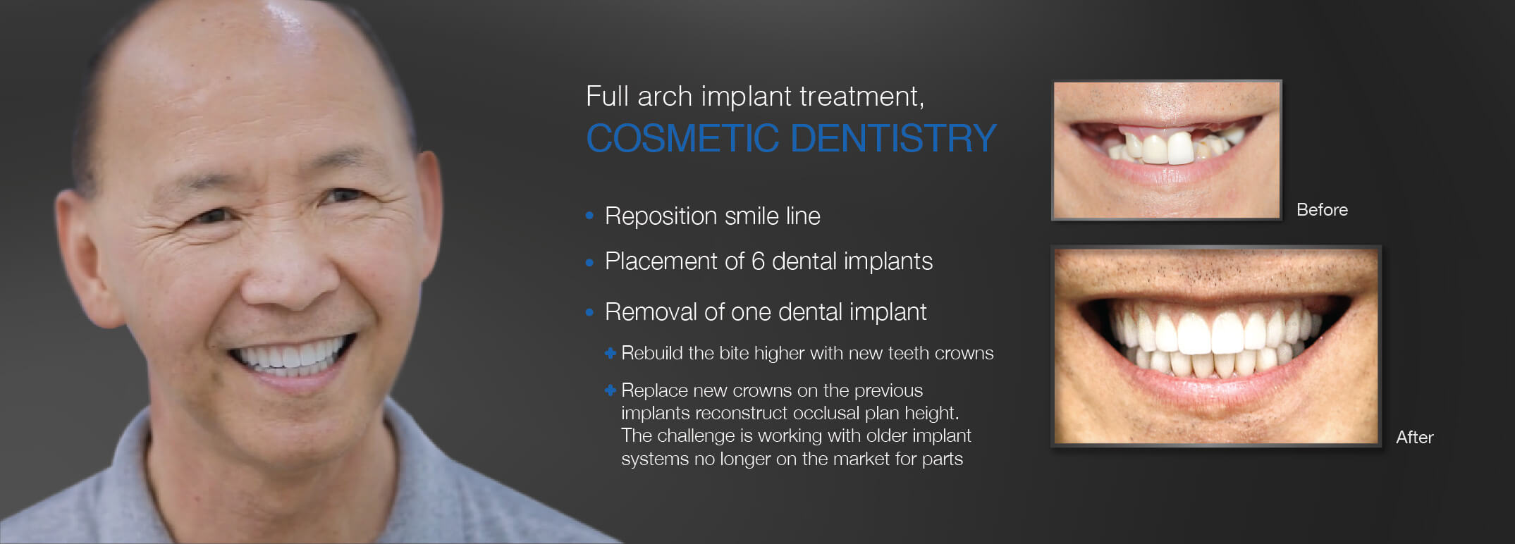 implant-treatment-and-cosmetic-dentistry-at-westcoast